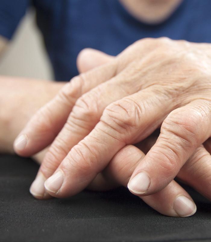 Rheuma Hand